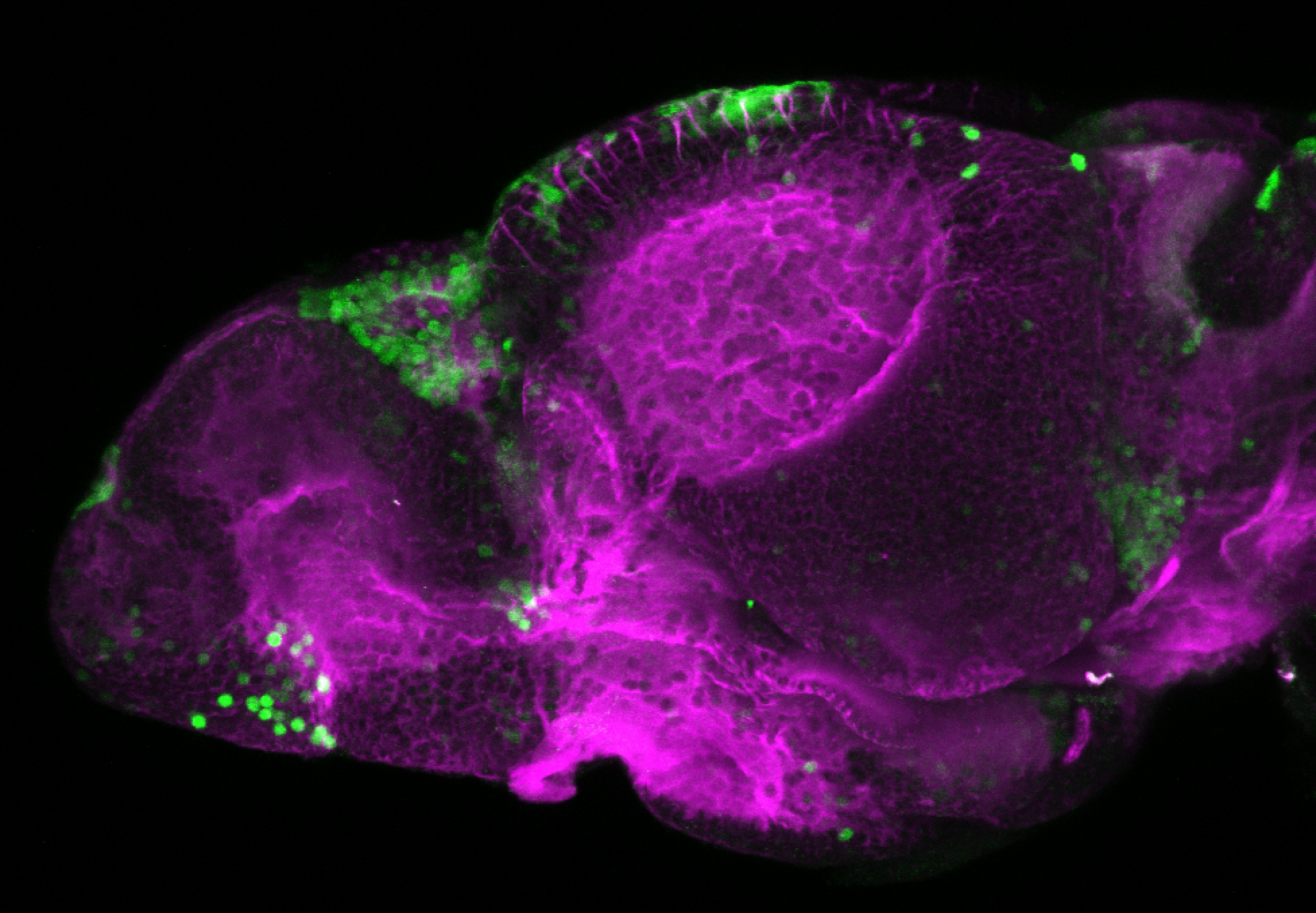 xeom:GFP 5dpf lateral with tubulin (magenta)