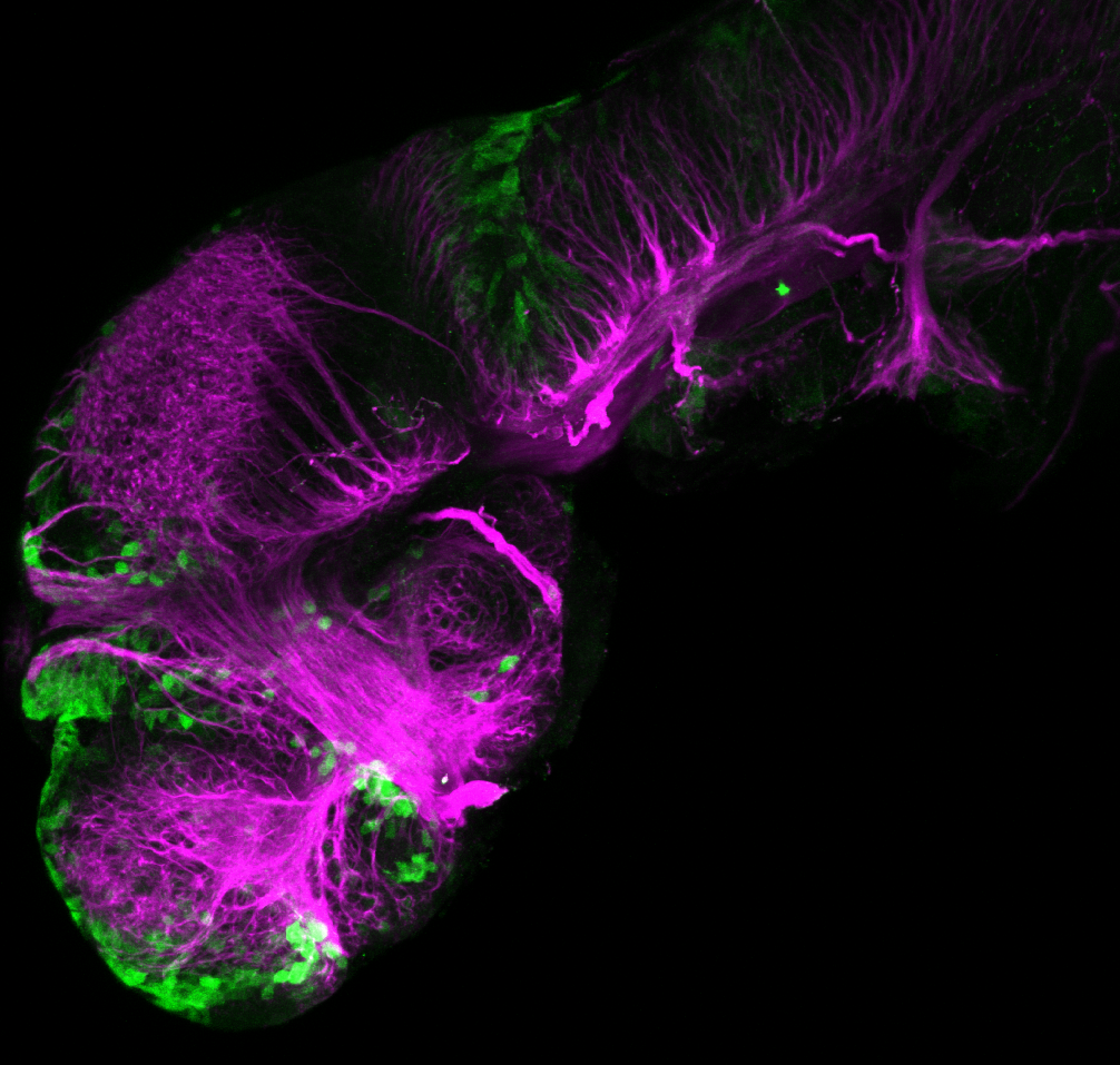 xeom:GFP 2dpf lateral with tubulin (magenta)
