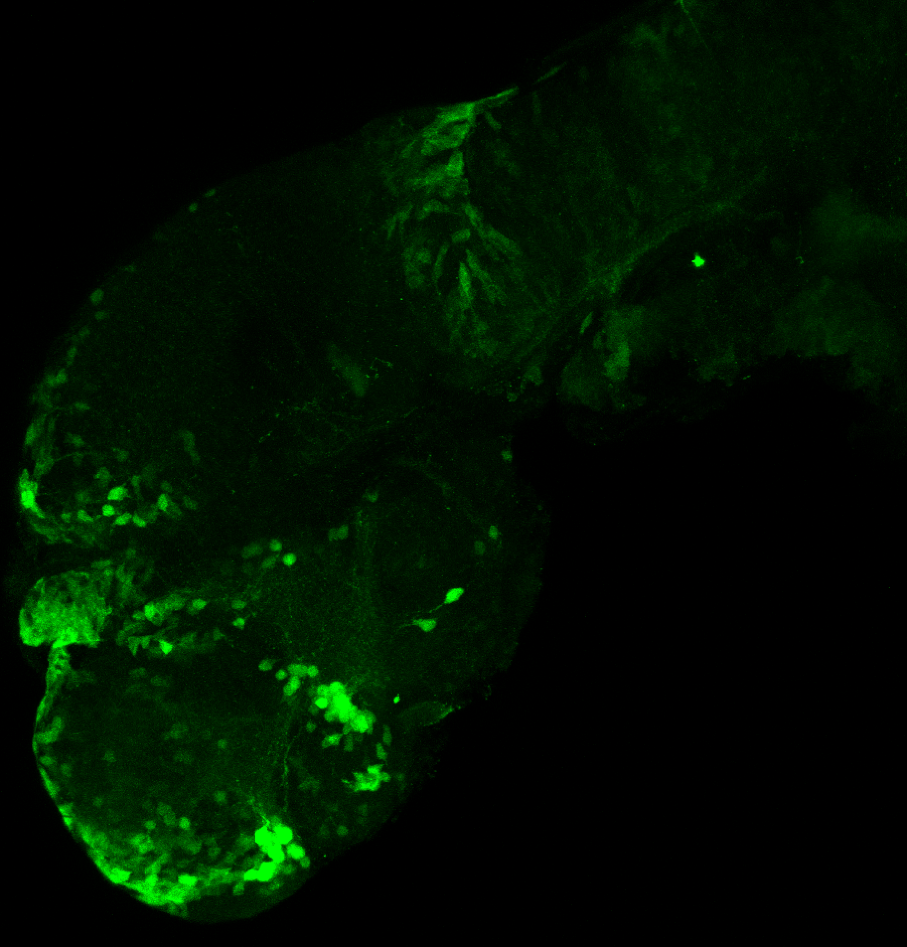 xeom:GFP 2dpf lateral