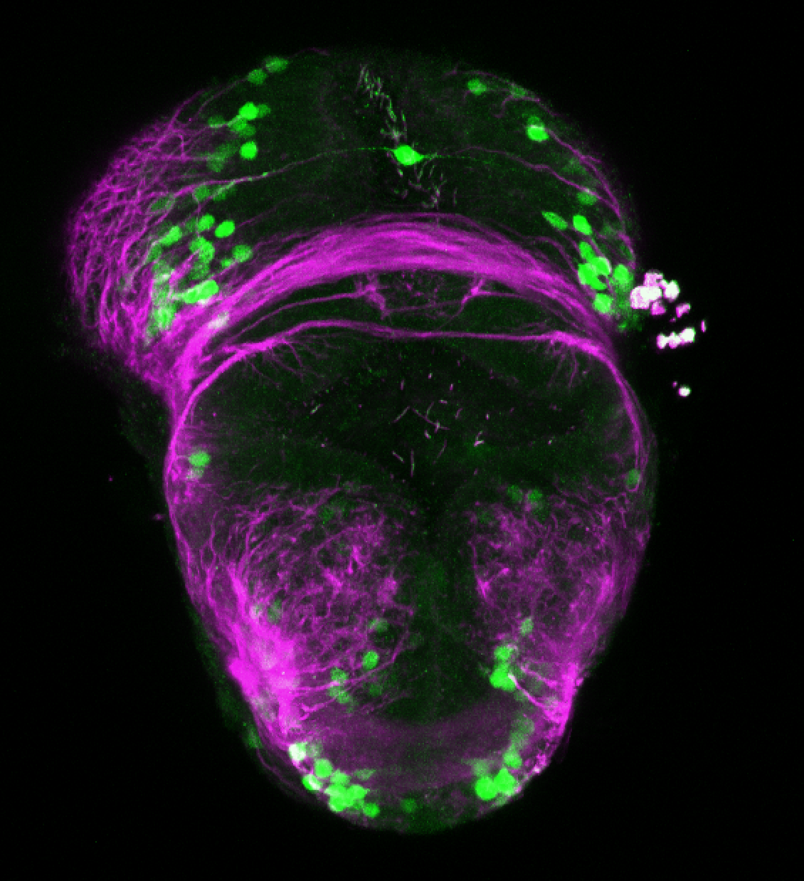 xeom:GFP 2dpf frontal with tubulin (magenta)