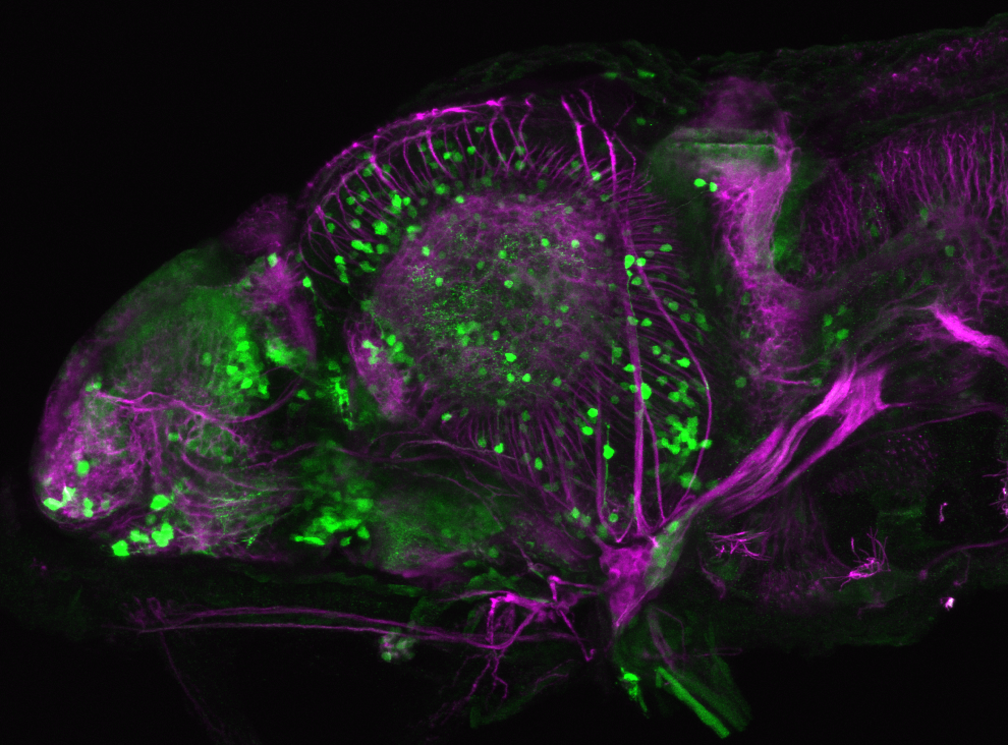 xeom:GFP 4dpf lateral with tubulin(magenta)