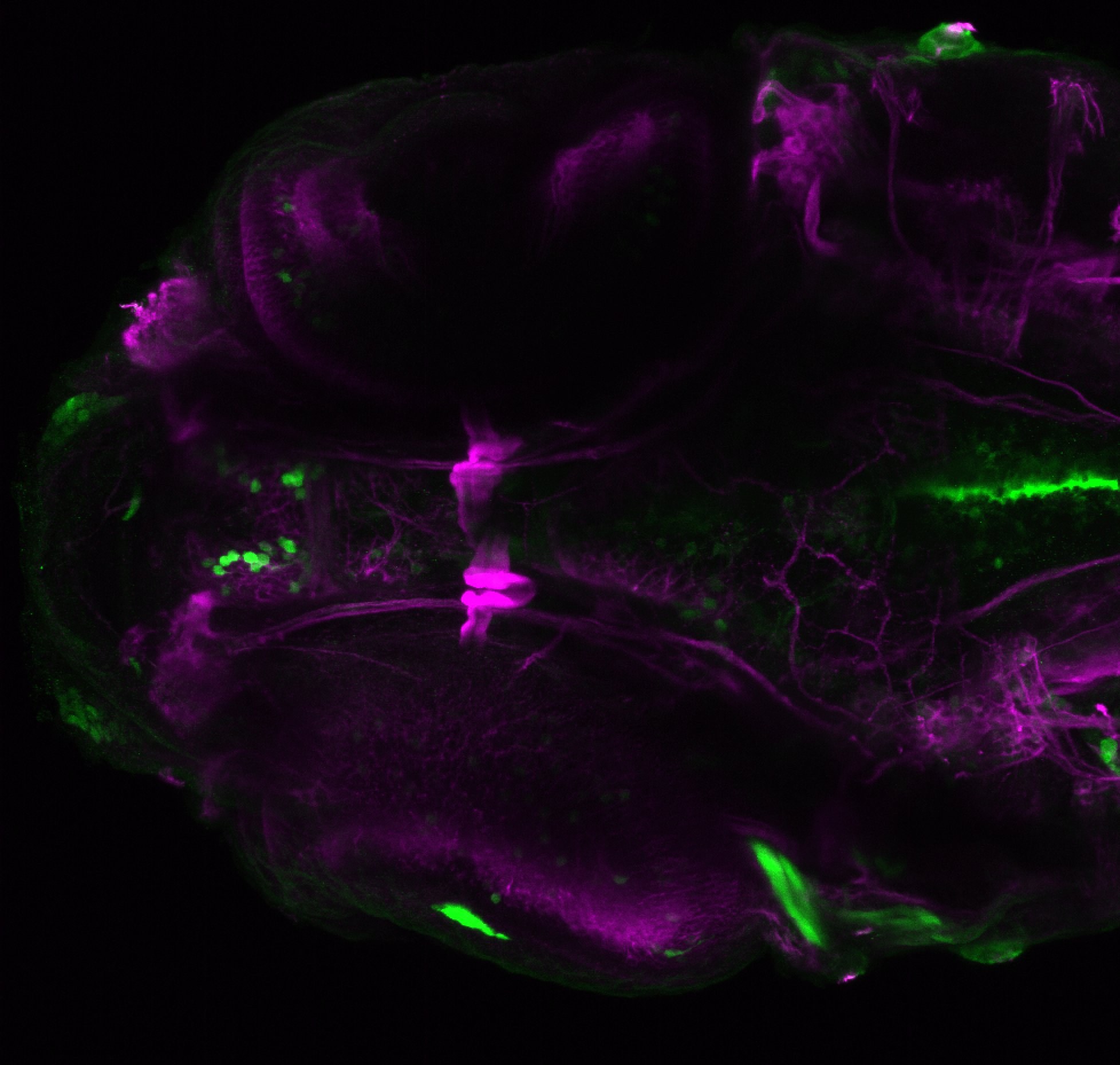 xeom:GFP 4dpf ventral with tubulin(magenta).