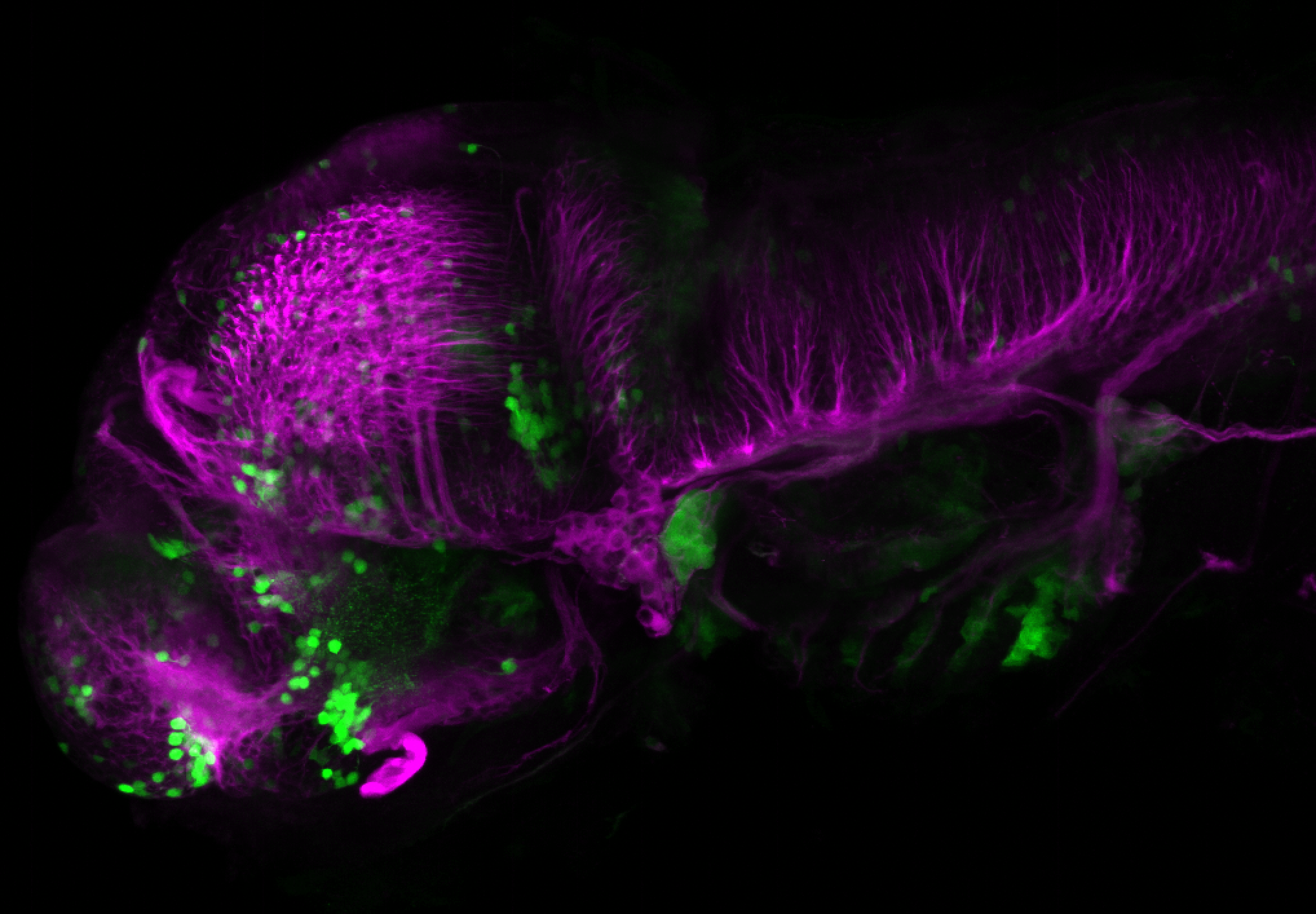 xeom:GFP 60hpf lateral with tubulin(magenta)