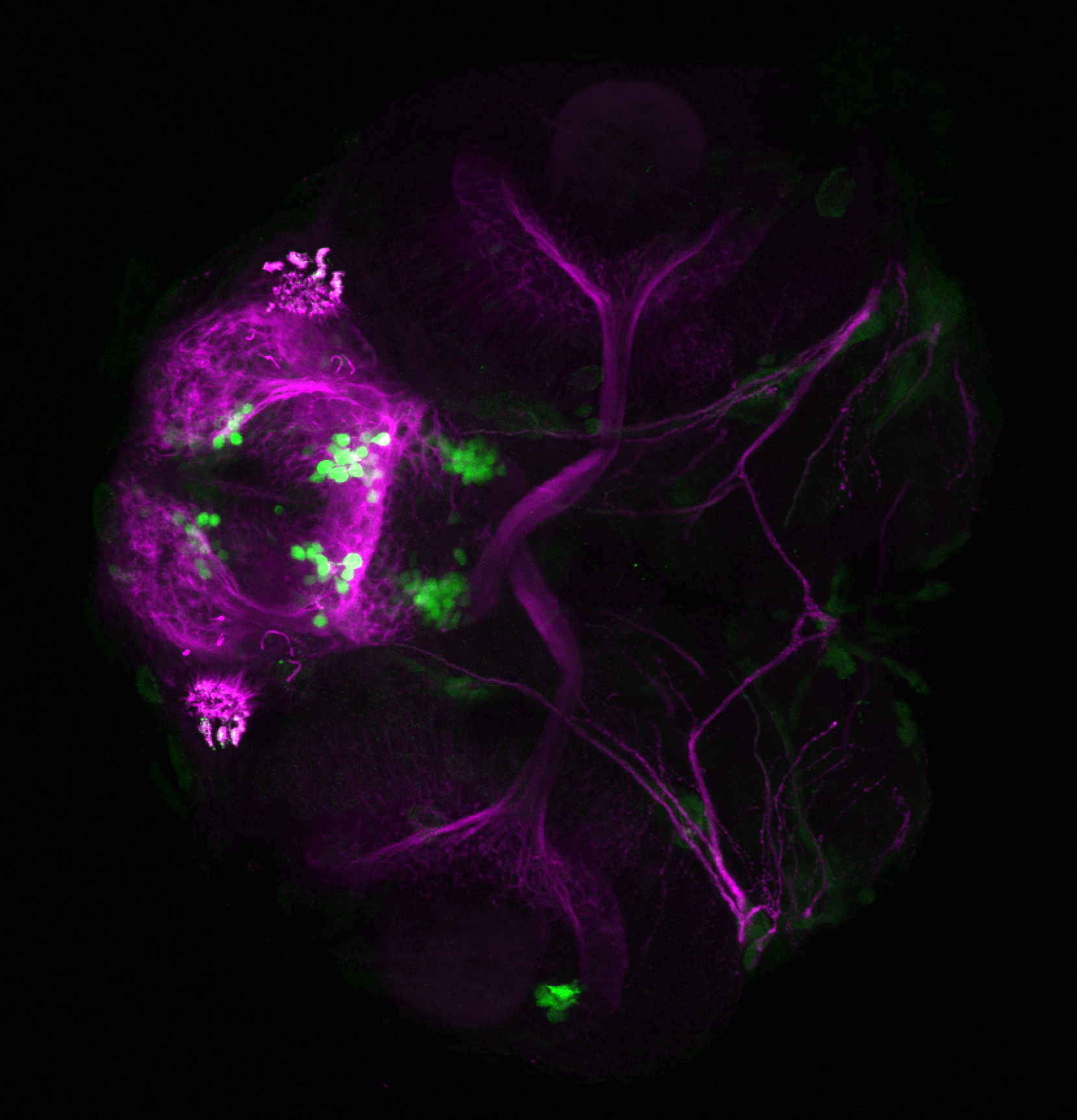 xeom:GFP 60hpf ventral and tubulin(magenta)