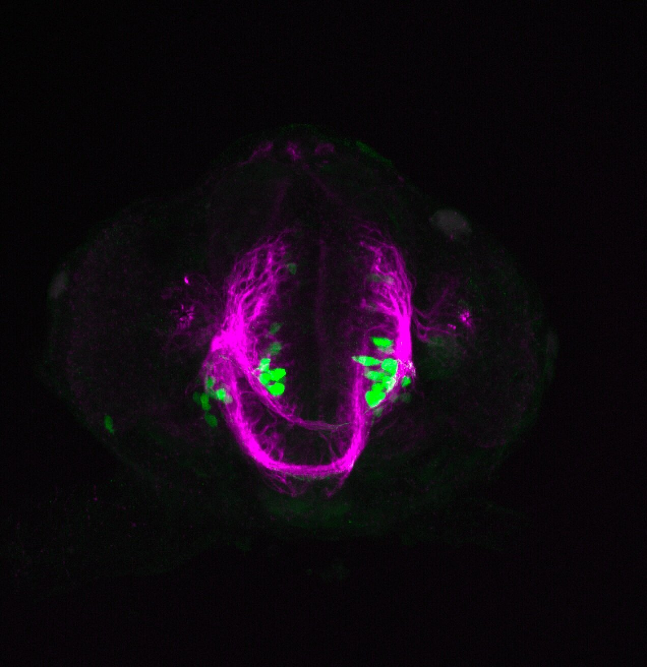 xeom:GFP 36hpf frontal with tubulin(magenta)