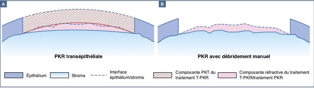 TransPKR (à gauche) et PKR
