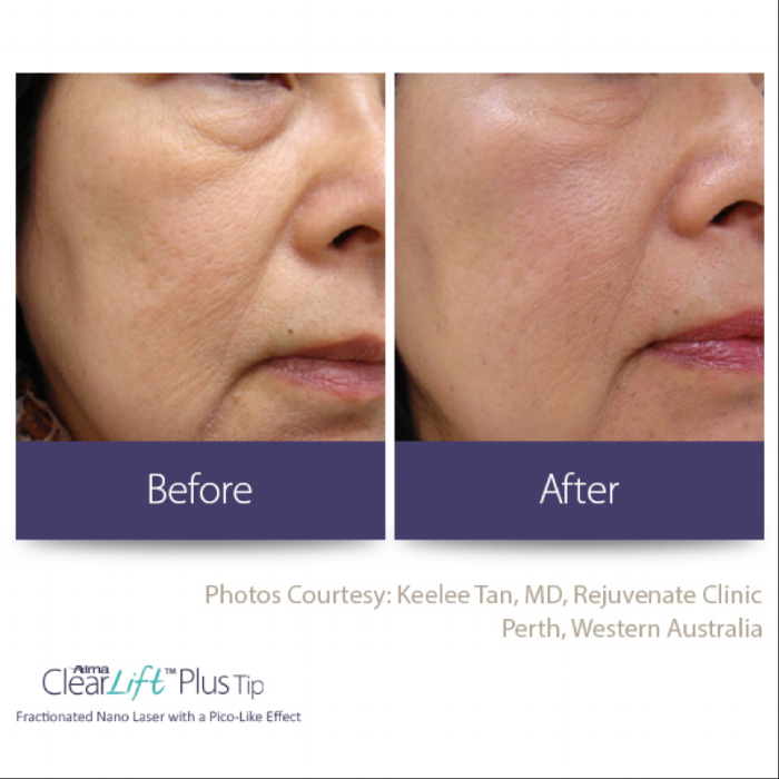 Clearlift before and after.png
