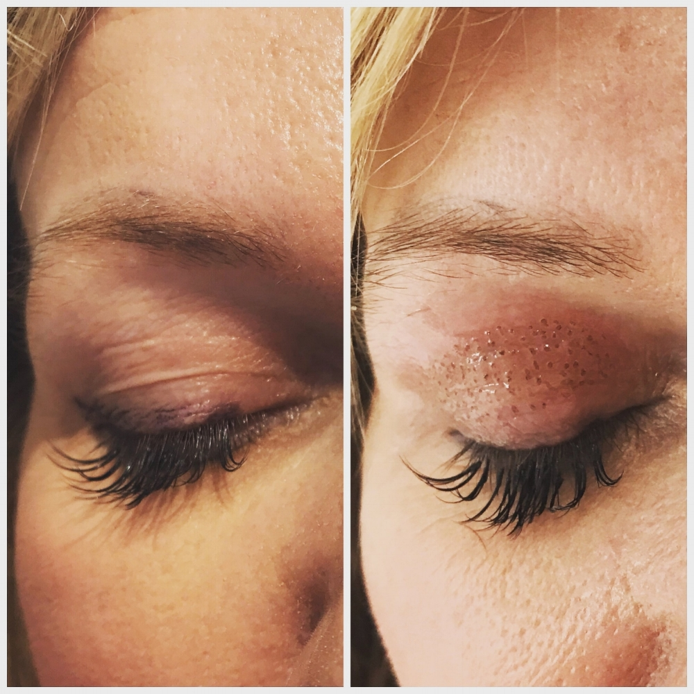 Before and immediately after Plasma IQ treatment. Results equivalent to surgery can be achieved with multiple sessions.