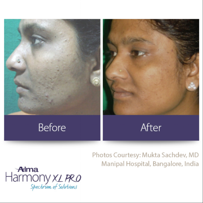 Harmony Acne Image.png