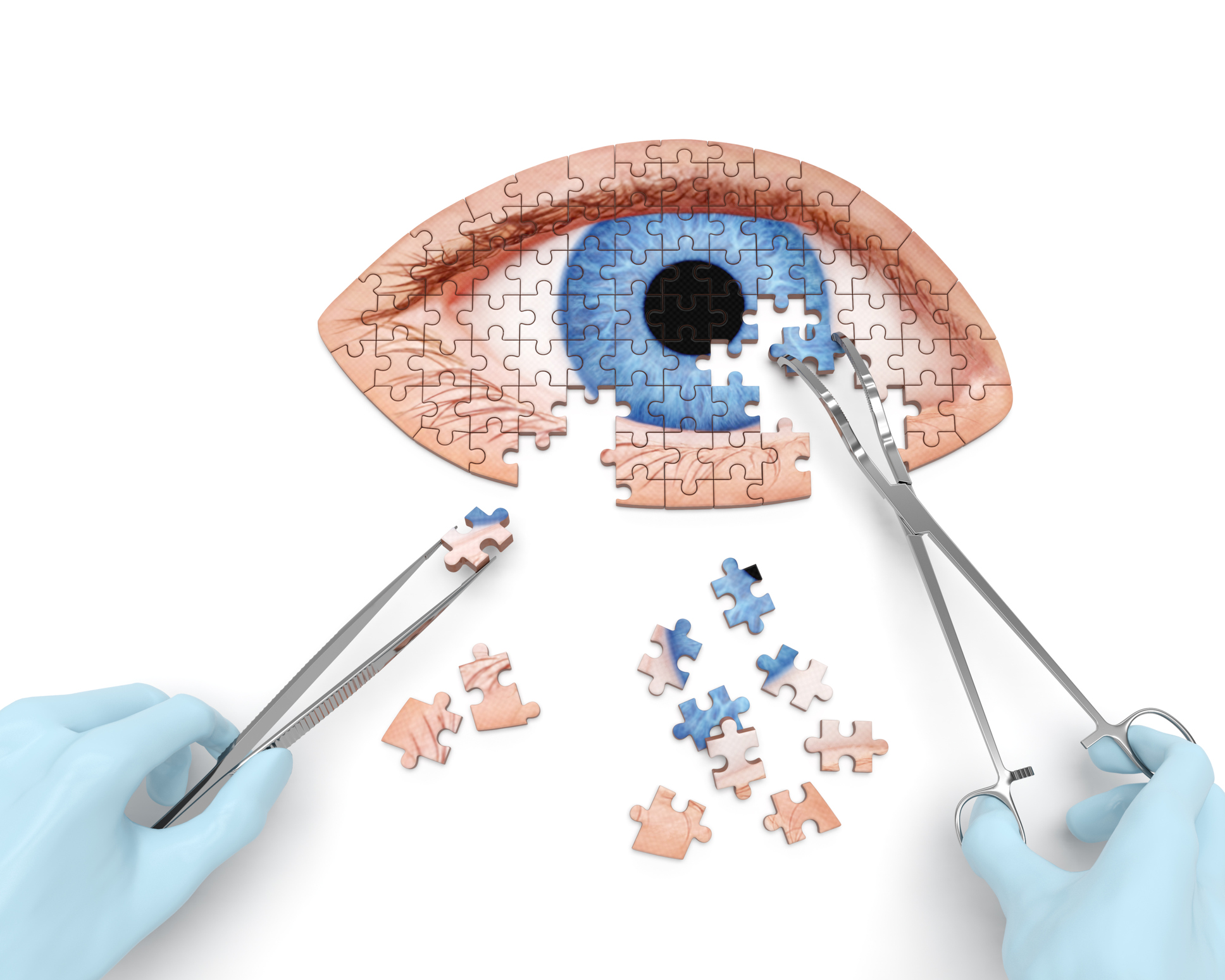 Foreign body removal from eye