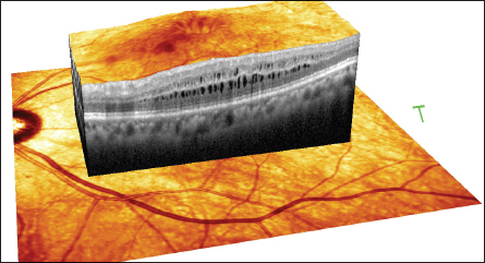 OCT retinal imaging