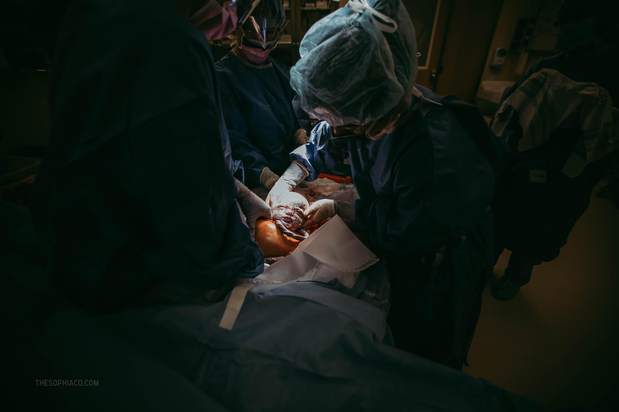 Oahu-Birth-Photographer-scheduled-cesarean-kaiser-14.jpg