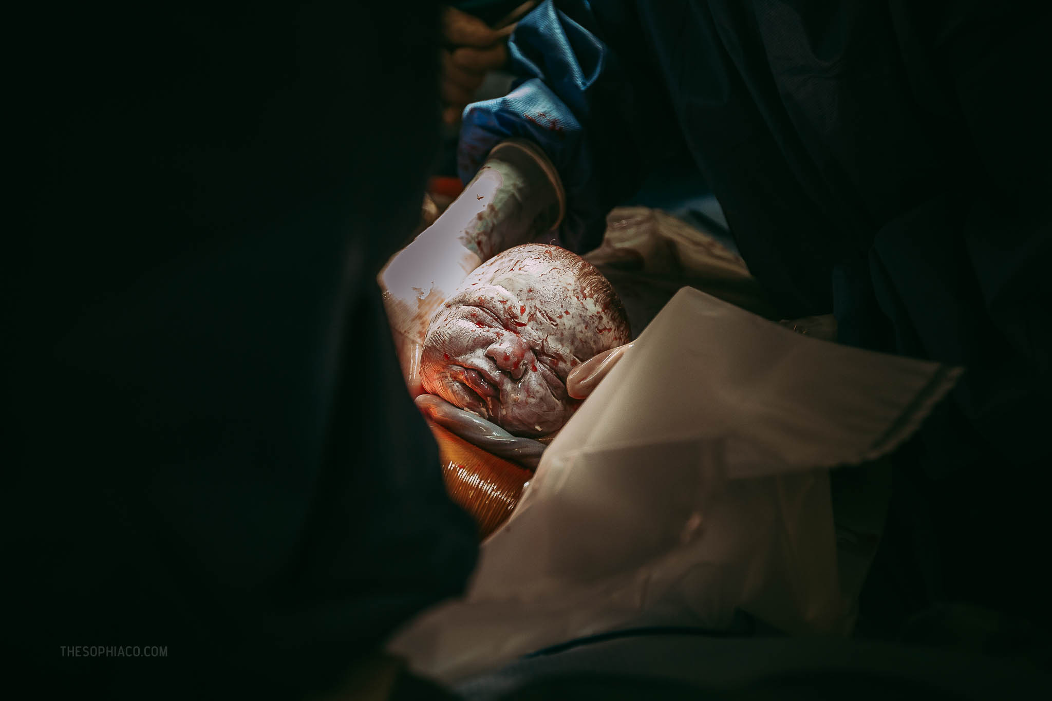 Oahu-Birth-Photographer-scheduled-cesarean-kaiser-15.jpg