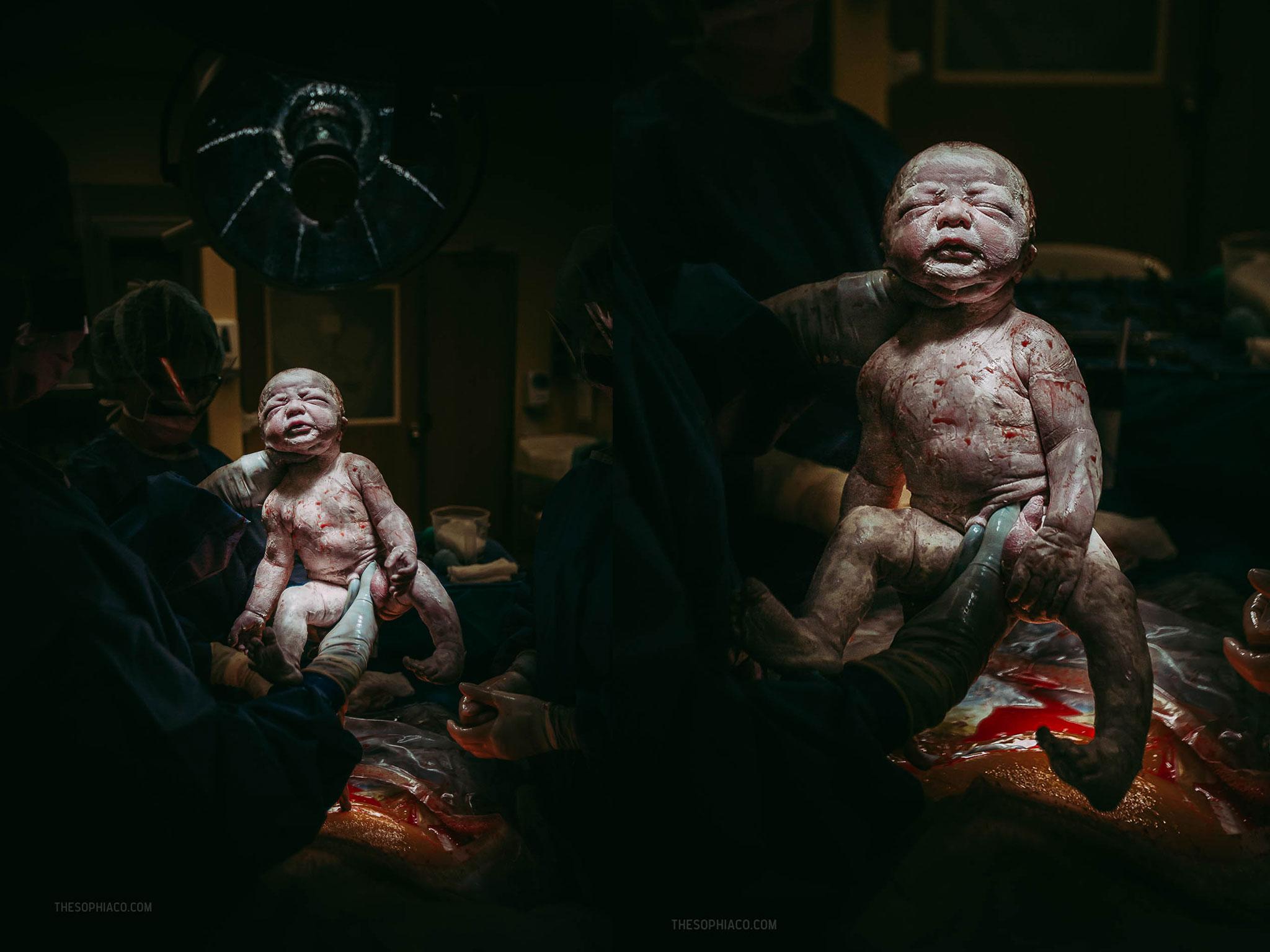 Oahu-Birth-Photographer-scheduled-cesarean-kaiser-18.jpg