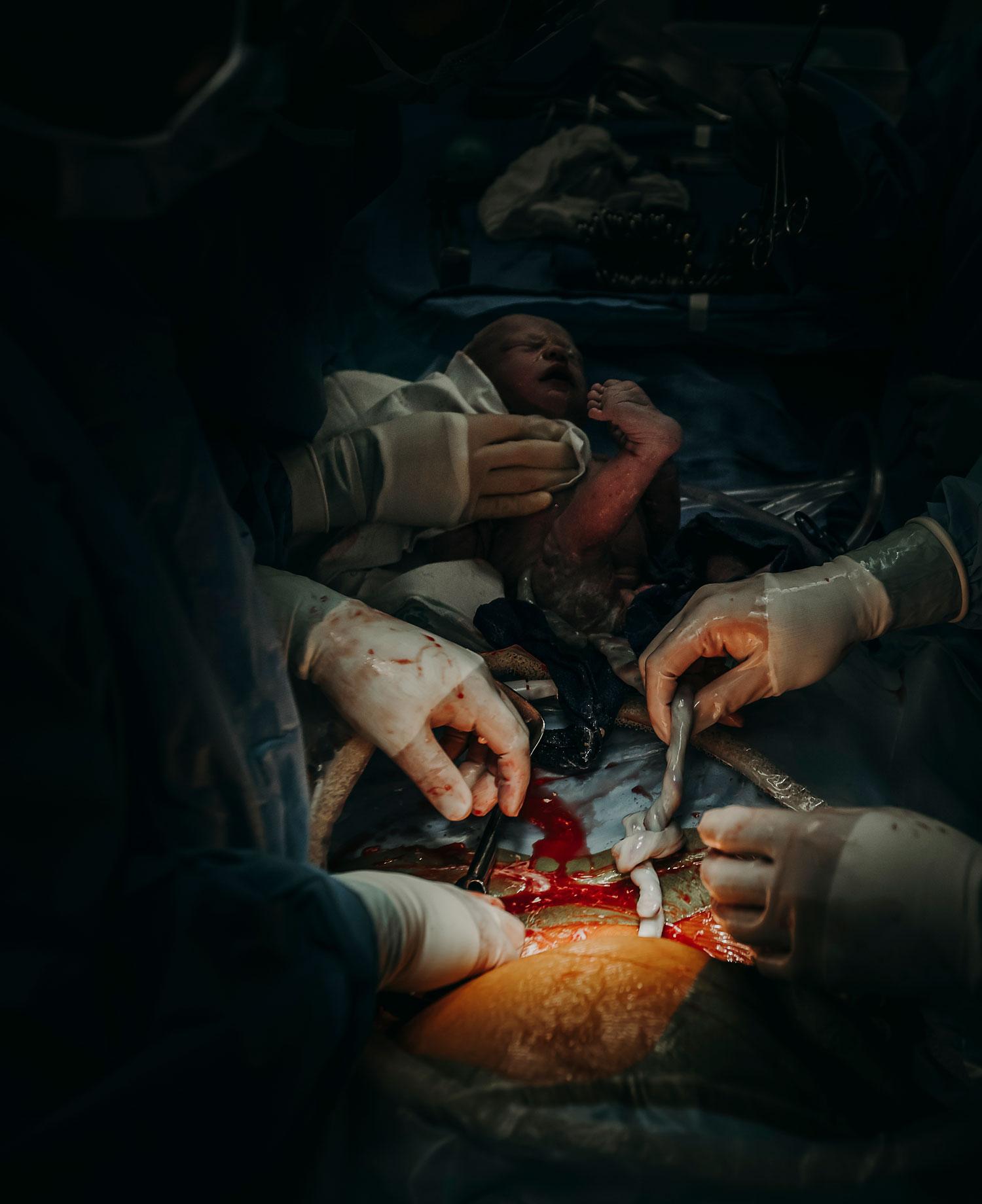 Hawaii-Birth-Photographer-Twins-Cesarean-11.jpg