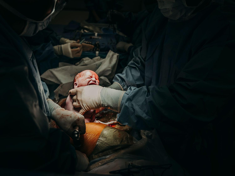 Hawaii-Birth-Photographer-Twins-Cesarean-12.jpg