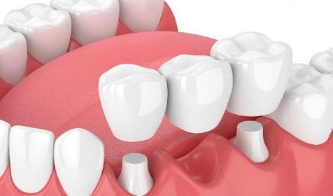 tratamiento-de-coronas-dentales-1.jpg