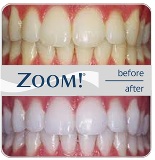 zoom-whitening.png