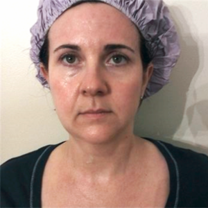 Woman aged 40 after microcurrent sessions at Mila Morgan - reduced eye puffiness, cheek and mouth area lifted, improved skin tone, eye and brow lift
