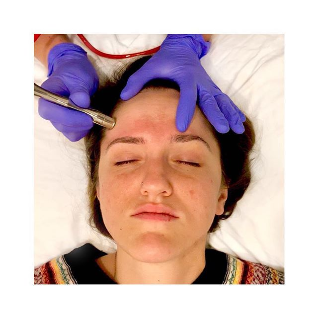 Microdermabrasion is great for dull, dry skin and hyperpigmentation! • This facial uses a mechanical exfoliation which goes as deep as the second layer of skin! This method of exfoliation will remove the dead skin cells sitting on the top layer of skin, revealing fresh, healthy skin underneath! • Call 703-845-7546 today to book your Microdermabrasion, and take advantage of our 40% off Happy Hour special!