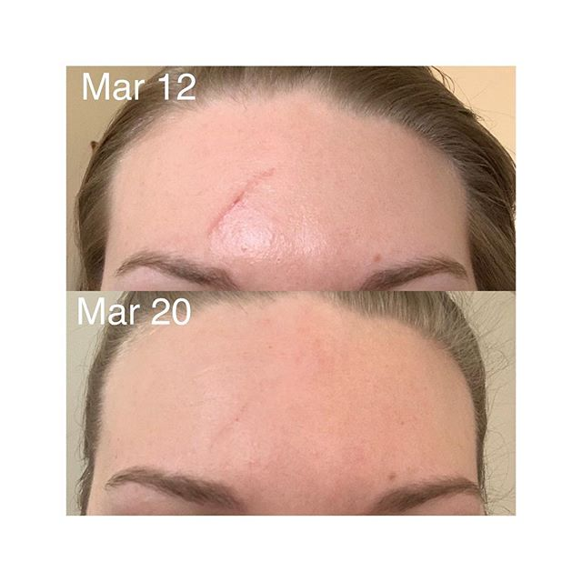 Result of Red Light Therapy! • This client did 4 red light therapy sessions and used @skinceuticals Epidermal Repair daily for a week to see these results! •  Check out our highlights to hear more about the benefits of red light therapy! Call 703-845-7546 to find out how you can get a FREE month of red light therapy
