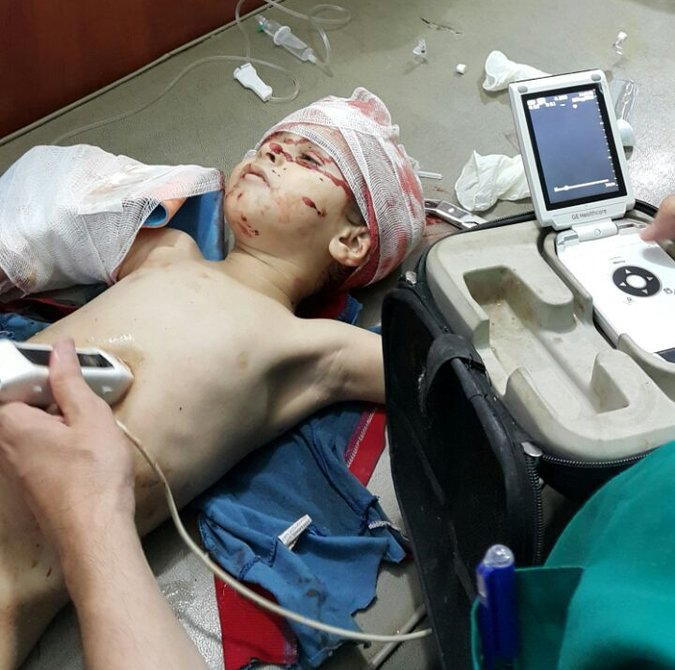 Ahmad, age 2, who died from his injuries shortly after this photo was taken