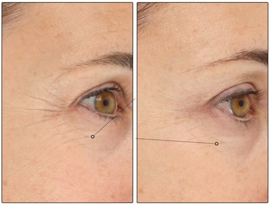 LightStim-Before-and-After-3 (1).jpg