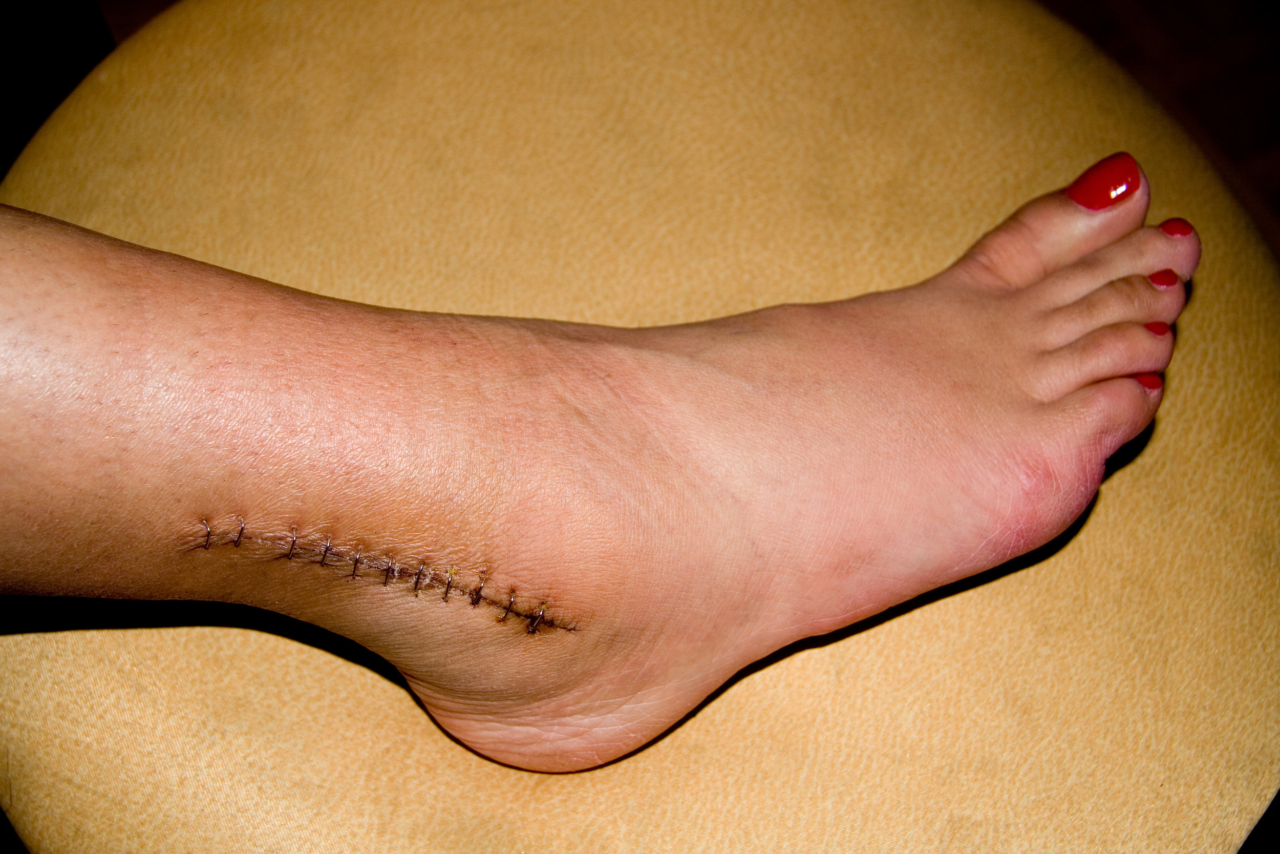 ankle_surgery