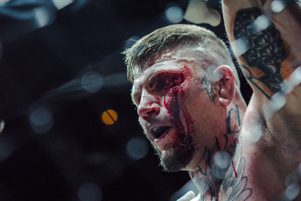Blood all over his left eye. The referee checks Stahl's condition and allows the fight to be continued. As Stahl would tell me later, he couldn't see with his left eye because the streaming blood had completely flooded his left eye making it blind.