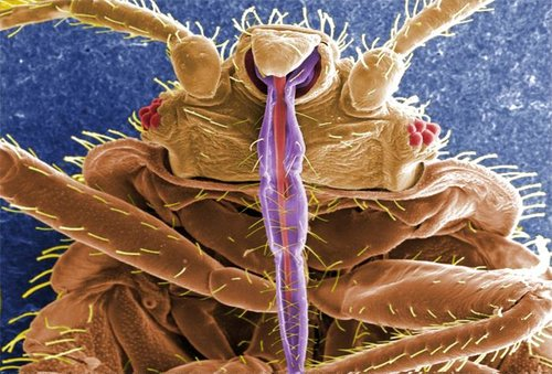 We're a Toronto bed bug exterminator with extensive knowledge of bed bug entomology and behaviour.