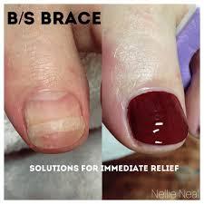 bs bracing2.jpg