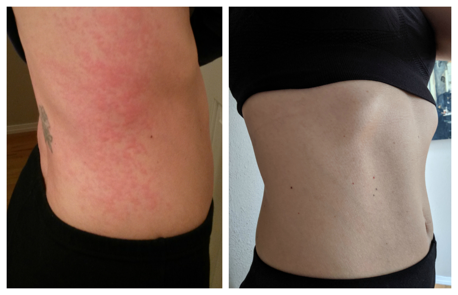 Before and After. This red, itchy rash was my daily reality. Today completely rash/hive free.