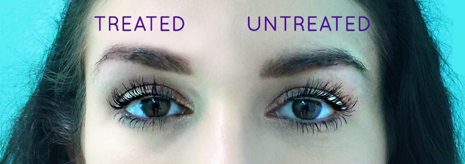 SkinTyte for Instant Brow Lift