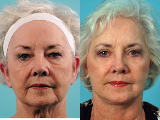 Facelift and Blepharoplasty
