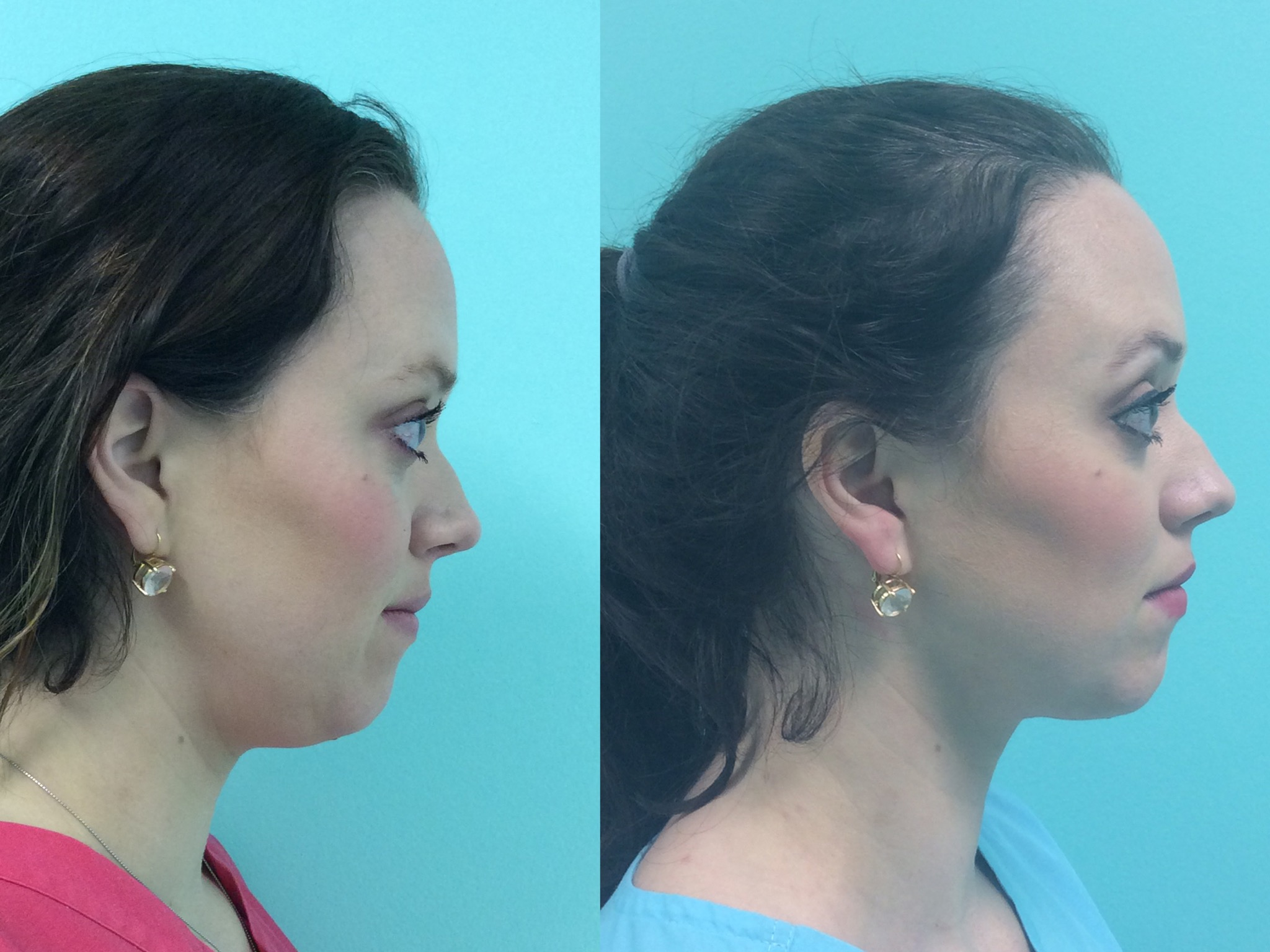 Kybella for 'Double Chin'