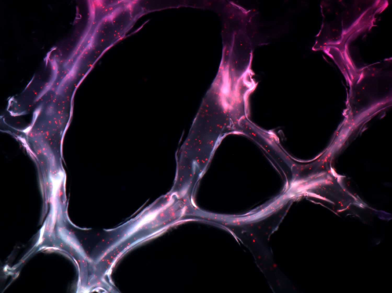 Fluorescence microscopy image of the adhesive hydrogel doped with nanoparticles for treatment of TNBC.