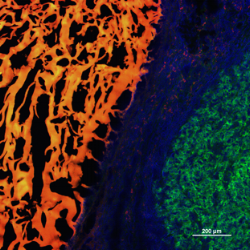 Fluorescence microscopy image of adhesive hydrogel (orange) on the surface of a TNBC tumor in vivo.
