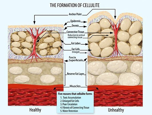 Our z wave treatment keeps cellulite the way it should be, healthy and tight