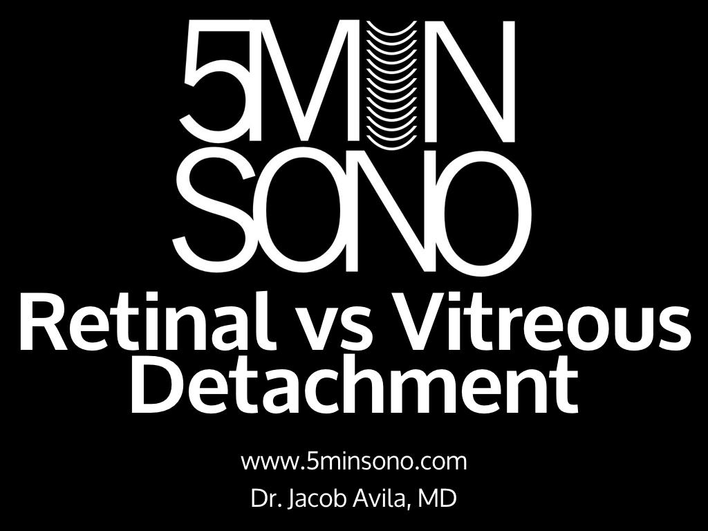 5-Min-Sono-RD-vs-VD-v2.020.jpg