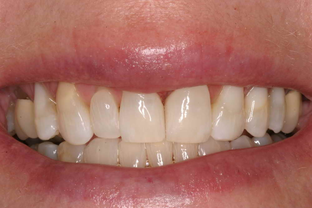 Diastema closure, After
