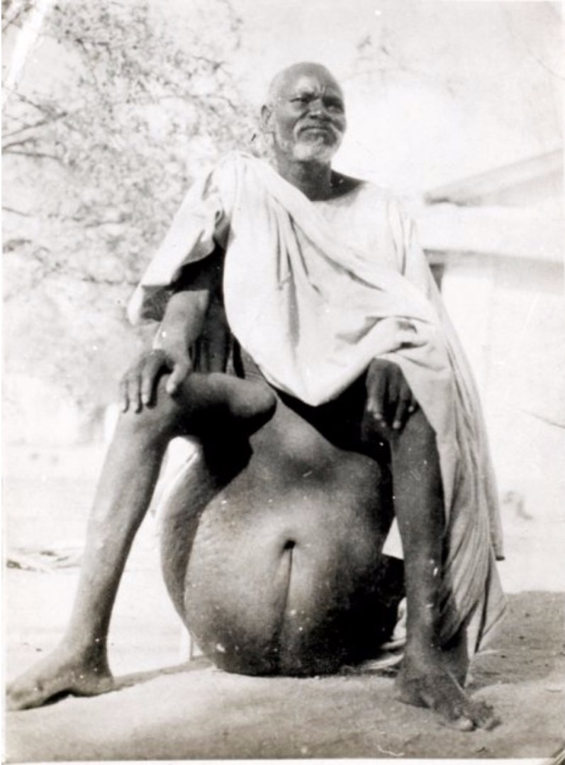 Above:  elephantiasis  of the testicles.