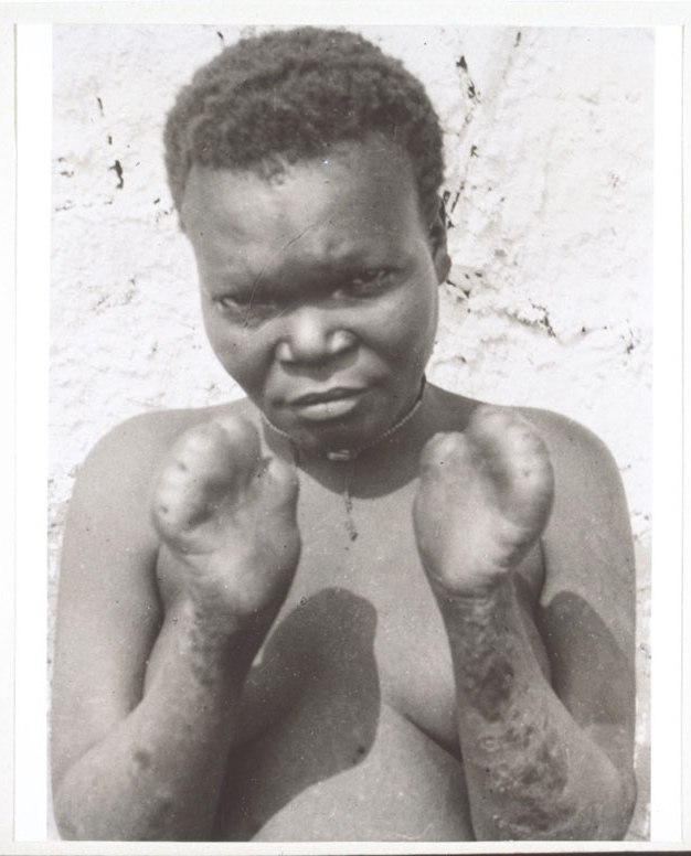 A person with leprosy.