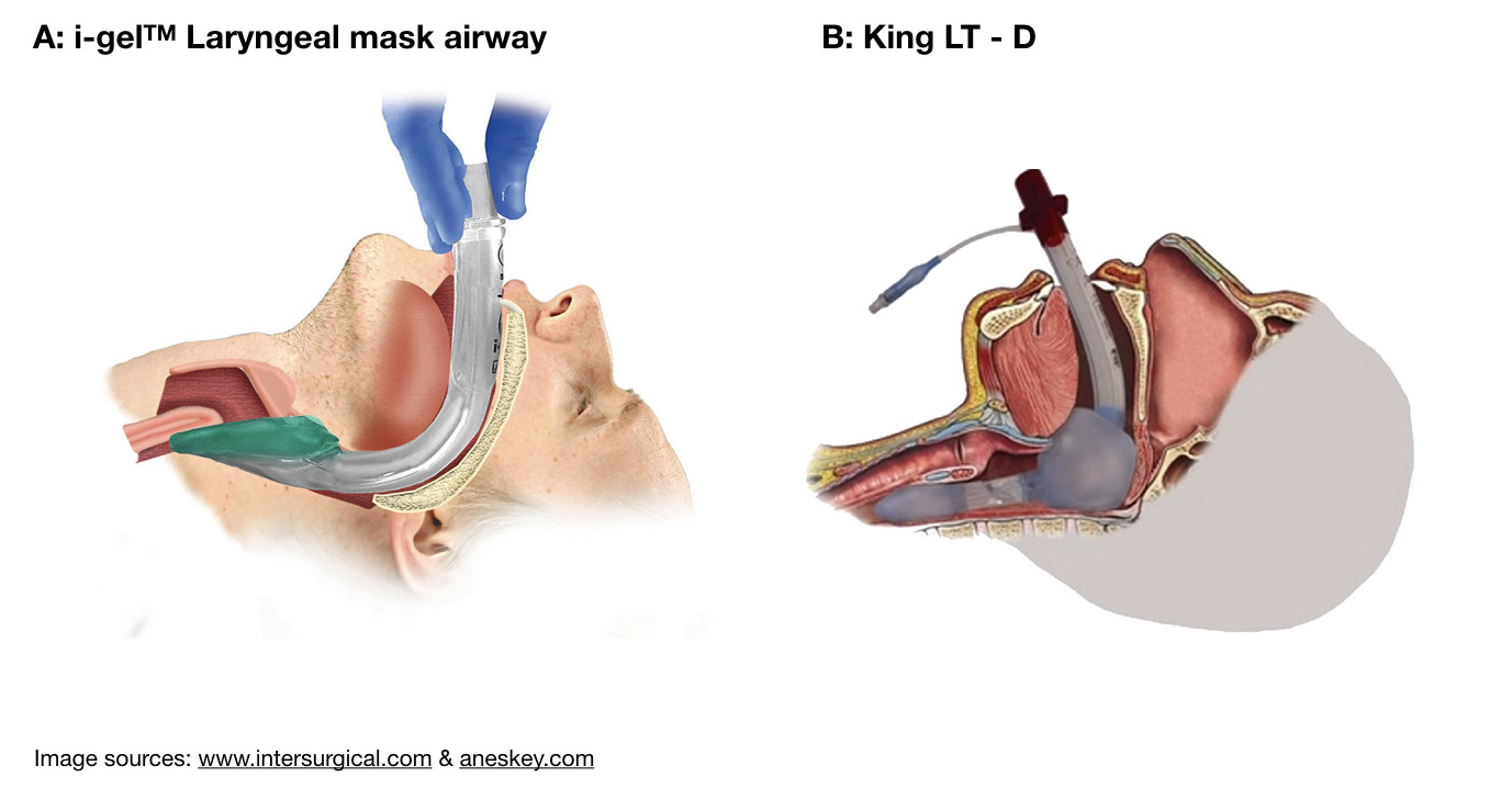 Figure 1: Ideal positioning of LMA-type and LT supraglottic airways.