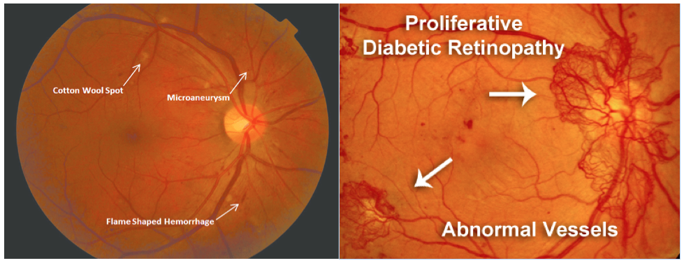 (Left) Image Credit: https://www.researchgate.net/figure/Moderate-non-proliferative-diabetic-retinopathy-with-no-diabetic-macular-edema_fig2_310612920  (Right) Image Credit: http://retinavitreous.com/diseases/dm_pdr.php