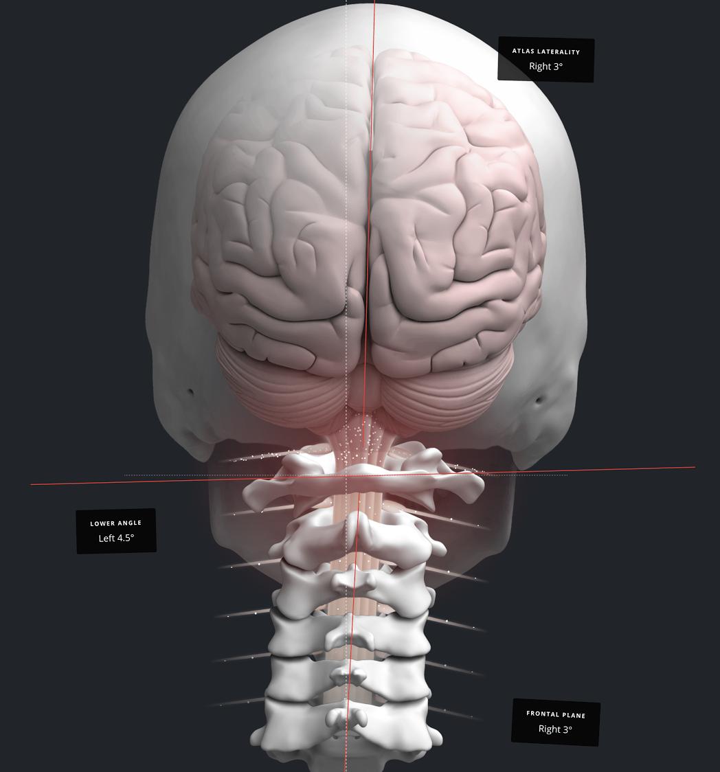 Treatment for Vertigo & Dizziness Los Angeles | Vital Head & Spinal Care
