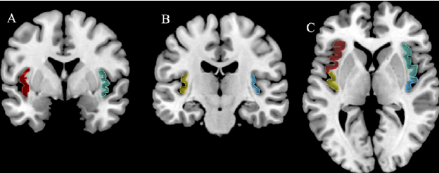 [Image is taken from  Systematic Meta-Analysis of Insula Volume in Schizophrenia  (2012) by Alana M. Shepherd, Sandra L. Matheson, Kristin R. Laurens, Vaughan J. Carr & Melissa J. Green]