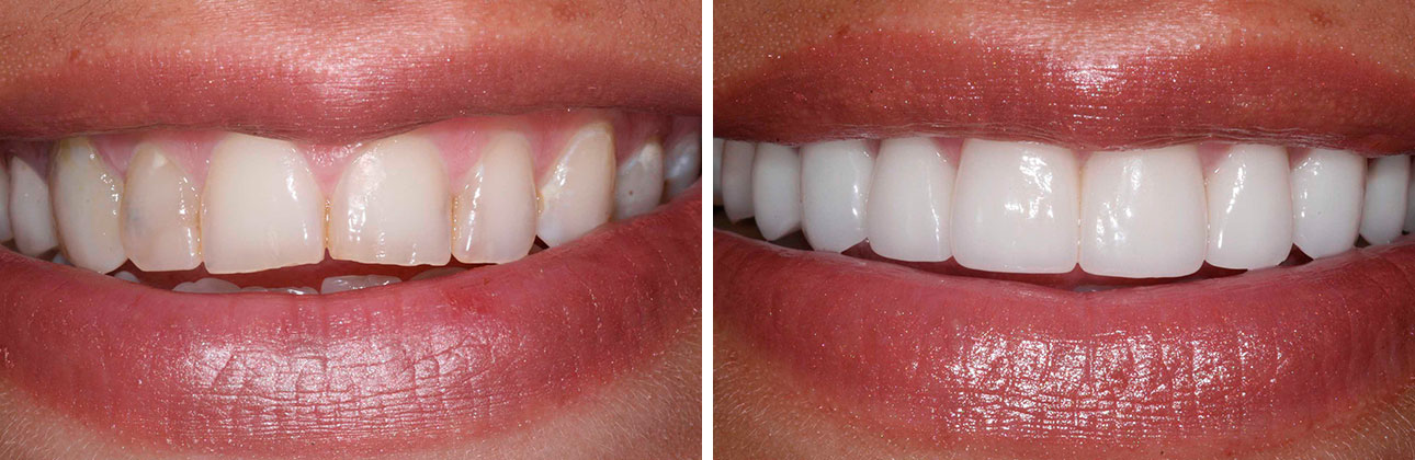 Confident New Smile   This patient had multiple stained and chipped teeth and felt unhappy with her smile. She was treated with 10 veneers to create a more esthetic and confident smile.