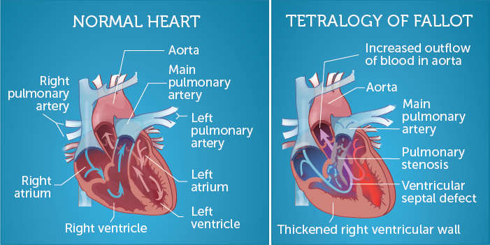 The difference between a normal heart and a heart with ToF. Image from an   overview of ToF by Boston Children's Hospital.