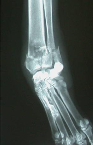 "A ""pathologic"" fracture (a fracture that occurs because there is underlying pathology in the bone) in the radius and ulna of a seemingly normal dog that jumped out of a truck and yelped in pain.  This radiograph also shows a classic bone tumor lesion. Pathologic fractures are difficult to repair and therefore amputation is usually necessary on an emergency basis."