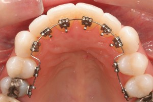 Lingual braces on the back of the teeth
